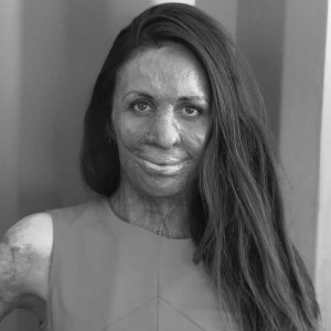 Everything you need to know about what happened to Turia Pitt