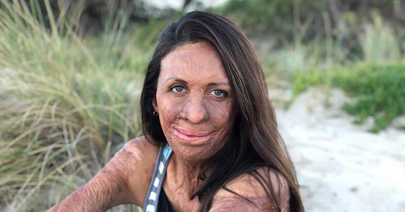 What happened to turia pitt