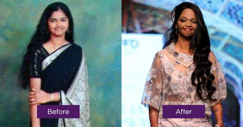 laxmi before and after real photo